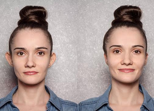 Chirurgie esthétique des oreilles en Tunisie - correction des oreilles déformées