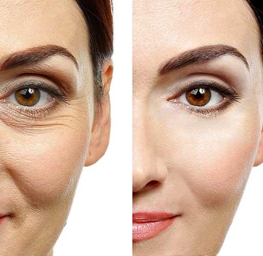 Le résultat d'un lifting du visage avant / après